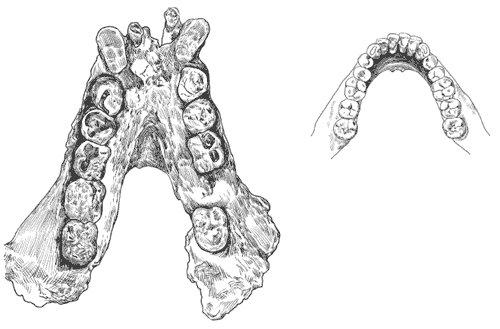 Gigantopithecus (Fosil Çizim)