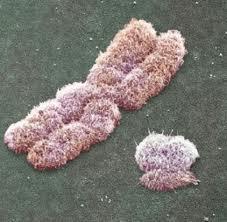Gerçek Kromozom Görüntüsü - 2