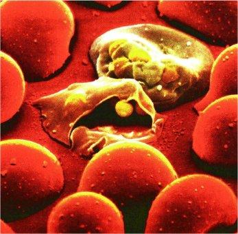 Plasmodium (Apicomplexa)