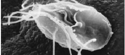 Giardia intestinalis (Metamondia)