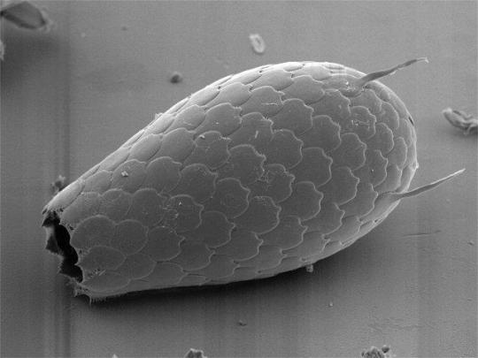 Euglypha (Cercazoa)