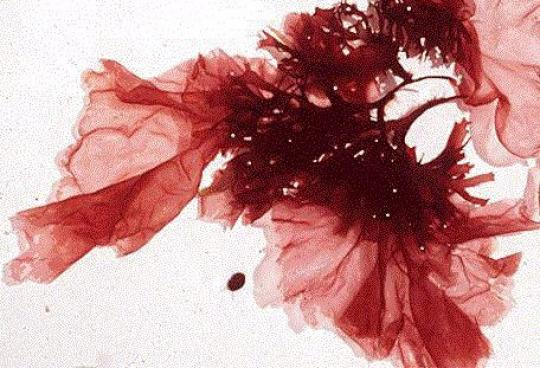 Kırmızı Alg (Rhodophyta)