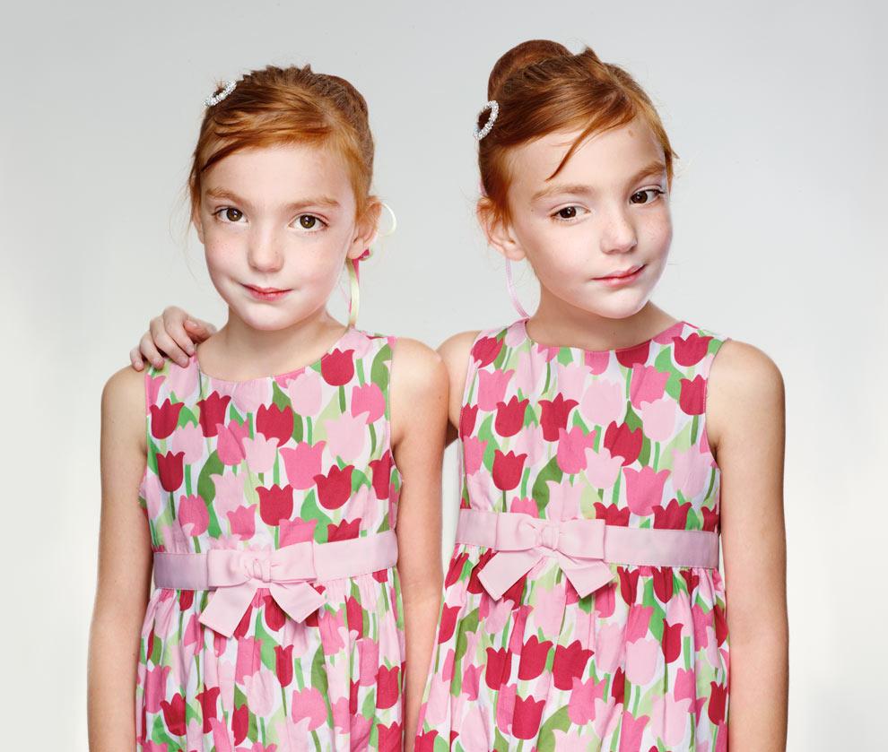 İkizlerde genetik benzerlik pratik olarak %100'dür.