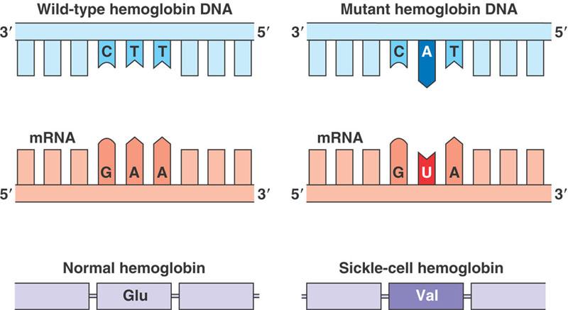 Orak hücre anemisine sebep olan mutasyonun şematik gösterimi... Normal bir hemoglobin proteinde belli bir noktada bulunması gereken Glutamik Asit (Glu) aminoasidi, GAA mRNA kodu ile kodlanmaktadır. Bu da, DNA üzerinde CTT koduyla bulunur. Bu kodun 2. nükleotitinde meydana gelen bir mutasyon Timin (T) nükleotitini Adenin (A) nükleotitine çevirebilir. Bu durumda, mRNA üretildiğinde GAA kodu yerine GUA kodu üretilir ve bunun karşılığı da Glutamik Asit yerine Valin (Val) aminoasidinin oluşumudur. Bu durum, hemoglobinin yapısını değiştirerek orak hücre anemisine neden olur.