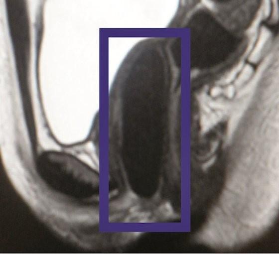 Fotoğrafta nakledilmiş bir vajinanın MRI görüntüsü görüyorsunuz.
