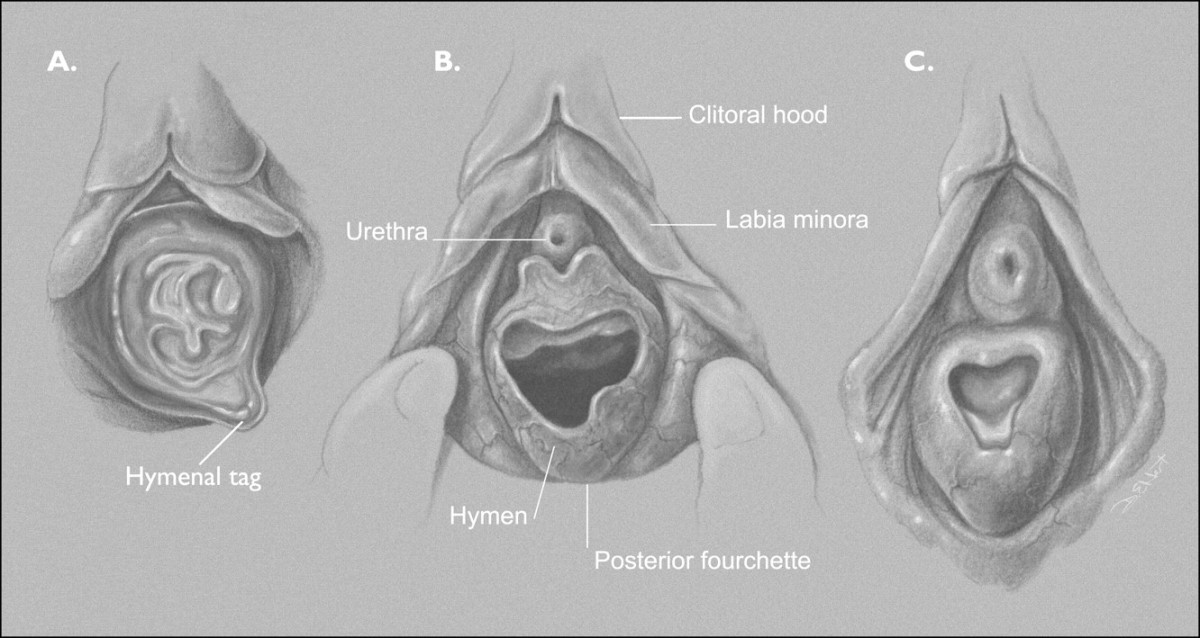 Vajinal Anatomi ve Hymen