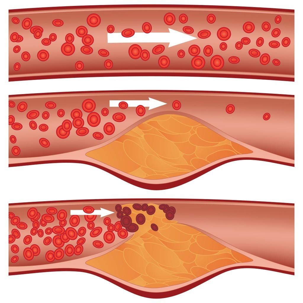 Abartılı kolesterol tüketimi sonucu damar tıkanıklığı...