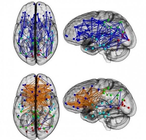 Pennsylvania Üniversitesi araştırmacıları tarafından yayınlanan ve erkek ve kadın beyinlerindeki yarımküre-içi bağlantıları (mavi) ve yarımküreler-arası bağlantıları (turuncu) gösteren bir fotoğraf. Üst sıra erkek, alt sıra kadın. Fotoğraf: Ulusal Bilimler Akademisi/Pennsylvania