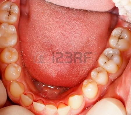 Omnivor bir hayvan olan insan ve dişleri...