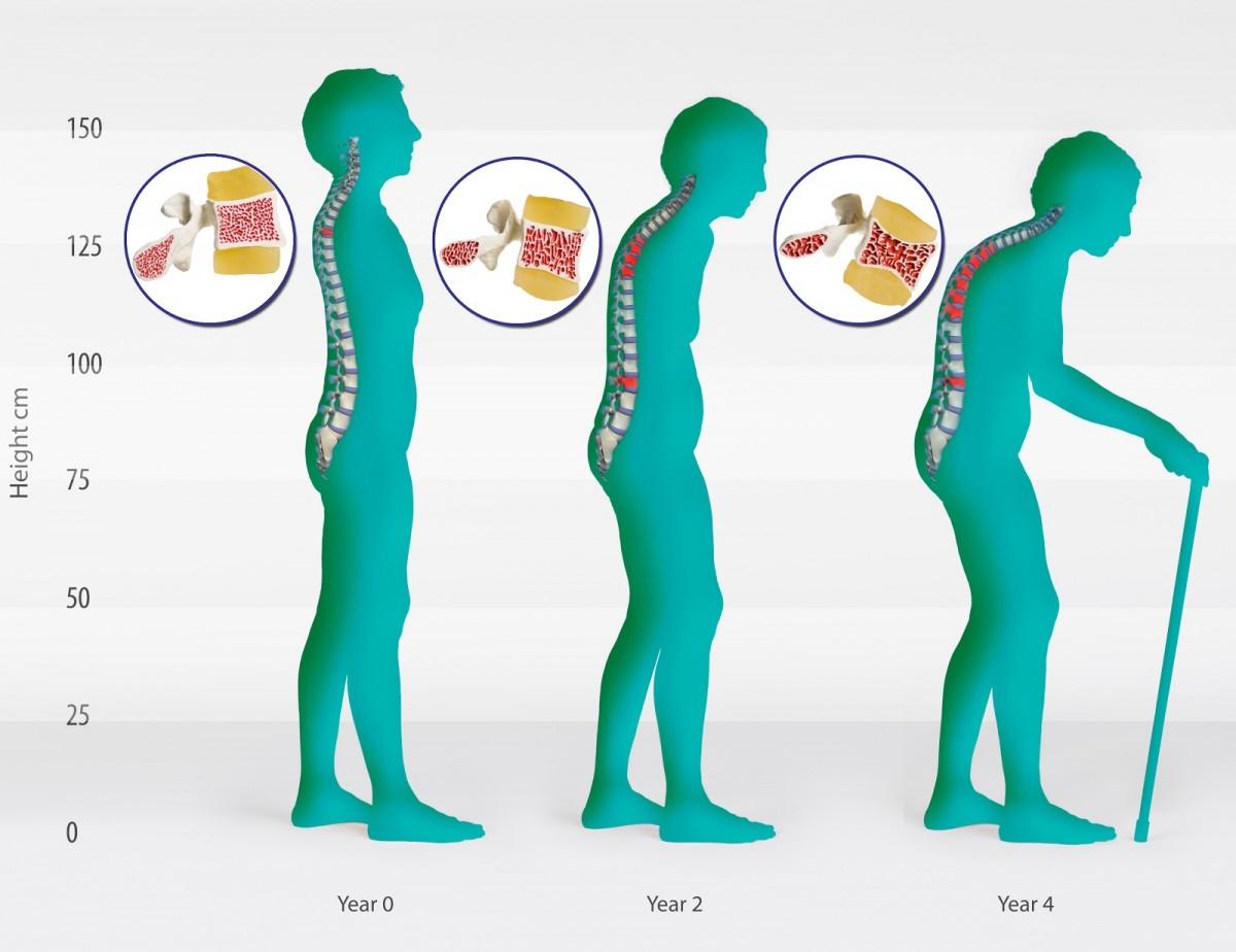 Osteoporozun evreleri... Bu evrelerden geçildikçe, yani yaş ilerledikçe belirtiler (semptomlar) de baş göstermeye başlar. Ancak kemik erimesi, oldukça