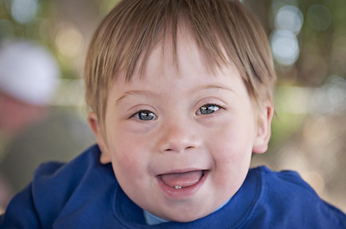 En tipik sendromlardan biri Down Sendromu'dur. Bu sendromun belirleyici bazı tıbbi işaretleri ve semptomları vardır. Bunlar bir araya gelerek, bireylerin yaşam standartlarında düşüşe neden olur. Dolayısıyla Down Sendromu, adı üzerinde bir