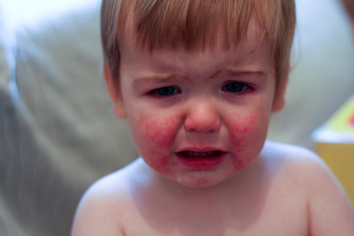Beşinci Hastalık olarak bilinen bu hastalık 6-13 yaş arası çocuklarda sıklıkla görülür. Henüz tam mekanizmaları keşfedilememiş olsa da, parvovirüs-B19 ile bulaştığı bilinmektedir. En temel semptomu, yüzün fotoğraftaki gibi kızarması ve döküntülerin oluşmasıdır. Ayrıca ateş, bitkinlik, burun tıkanıklığı, baş ağrısı, kusma ve mide bulantısı da diğer semptomlardır.