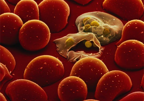 Sıtma, kişinin kan dolaşımını kullanarak üreyen protozoaların genellikle sivrisineklerle taşınması sonucu. İnsana bulaşabilen 5 farklı parazit vardır ve bunların 2 tanesi ölümcüldür, 3 tanesi ise o kadar ölümcül değildir. Afrika'daki çocuk ölümlerinin %30 civarı sıtmadan kaynaklanır. 5 yaşından küçük her 4 çocuktan 1'i sıtma nedeniyle ölmektedir. Sıtma da ateş, üşüme, baş ağrısı, terleme, bitkinlik, mide bulantısı ve kusma ile kendini gösterir. Ayrıca nöbetler görülür.