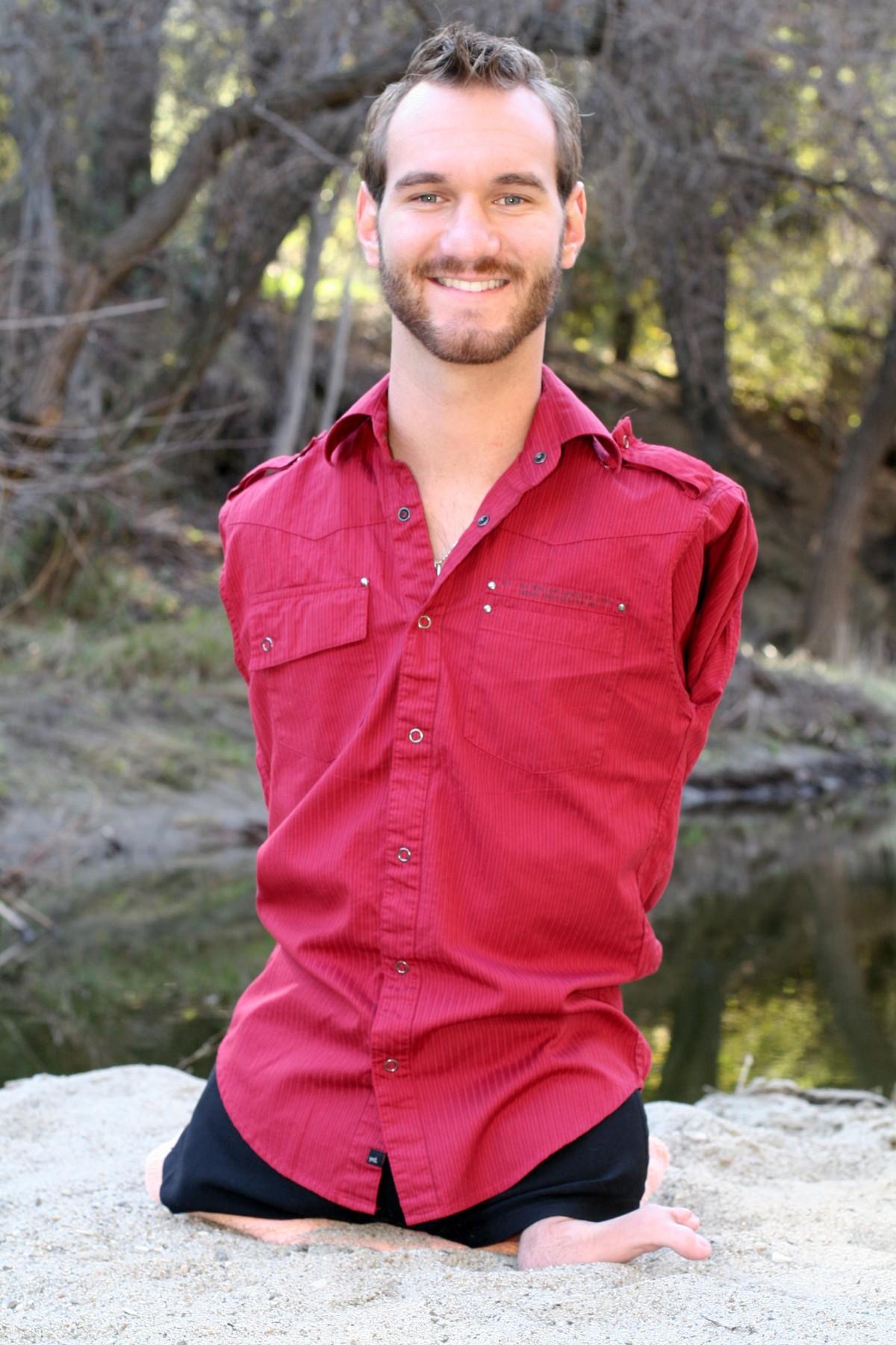 Nick Vujicic, fokomeli denen, bebeklerde kol ve bacakların tam olarak gelişmemekle birlikte birbirine yapışık olarak oluşmasına neden olan, fiziksel hareketleri müthiş ölçüde kısıtlayan bir hastalığa sahip Avusturalyalı bir motivasyonel konuşmacıdır. 1982 doğumlu olan ve kolları ve bacakları hiç bulunmayan Vujicic, 19 yaşında konuşmalar vermeye başlamıştır, 30 yaşında ise evlenerek 2 çocuk sahibi olmayı başarmıştır. Vujicic vakasında da görülebileceği gibi, söz konusu insanlardaki hastalıklar olduğunda tıp ve teknoloji sayesinde son derece kısıtlayıcı durumlar bile aşılabilmektedir.