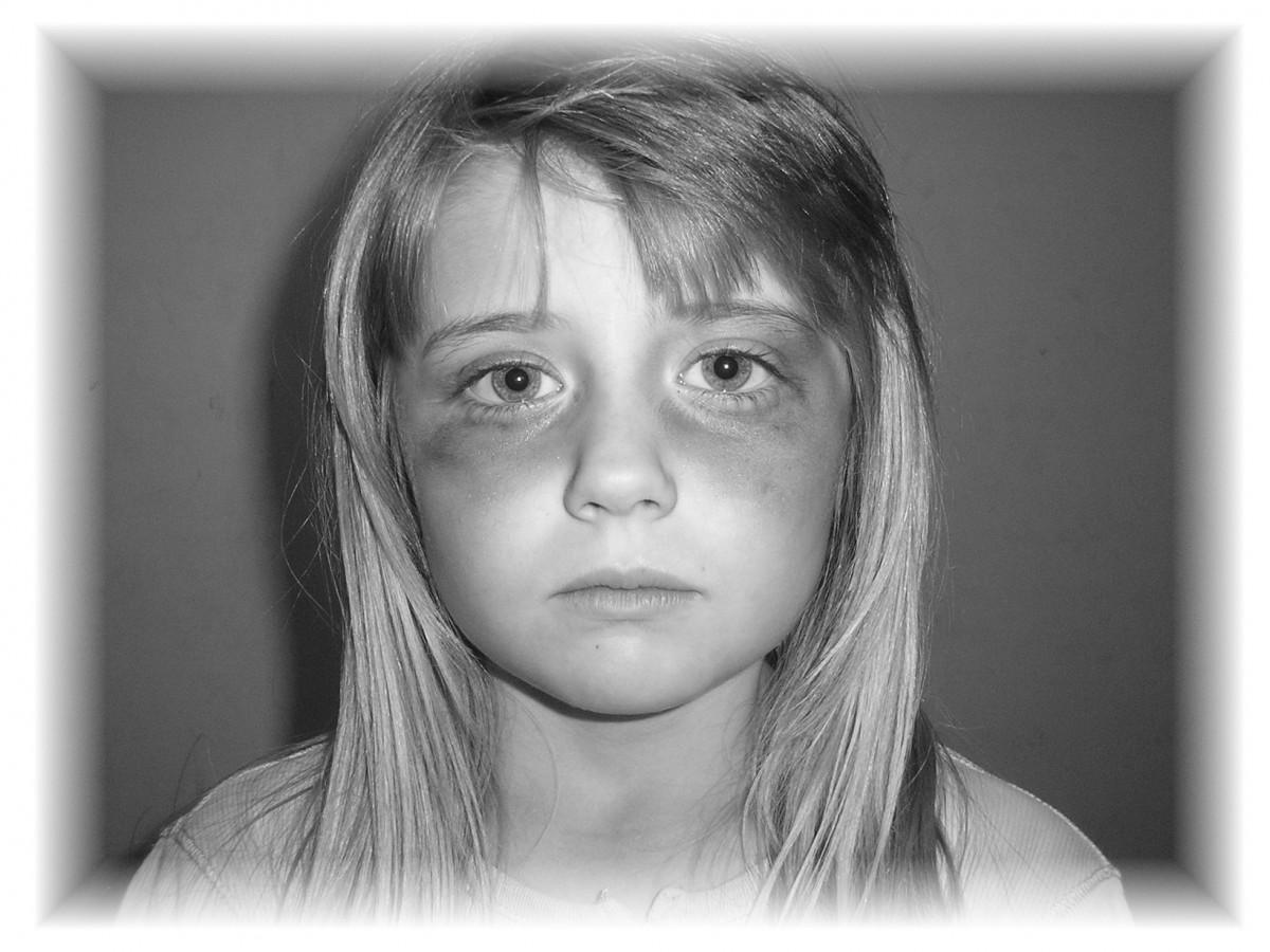 Pedofili vakalarında genellikle çocuk olan taraf fiziksel zarar görür. Bu zarar illa dayak gibi bir şiddetle olmak zorunda değildir. Cinsel organların yapısal ve büyüklük açısından farklılığı dolayısıyla zarar görürler. Bu fiziksel zararlar neredeyse her zaman zihinsel sorunları da beraberinde getirir.