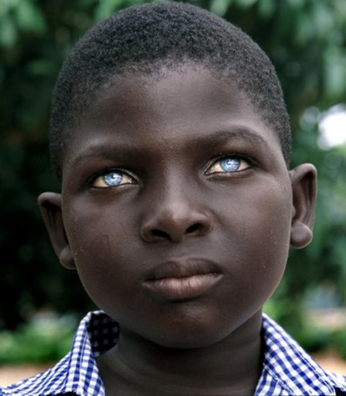 Siyahilerde görülen mavi göz mutasyonu...