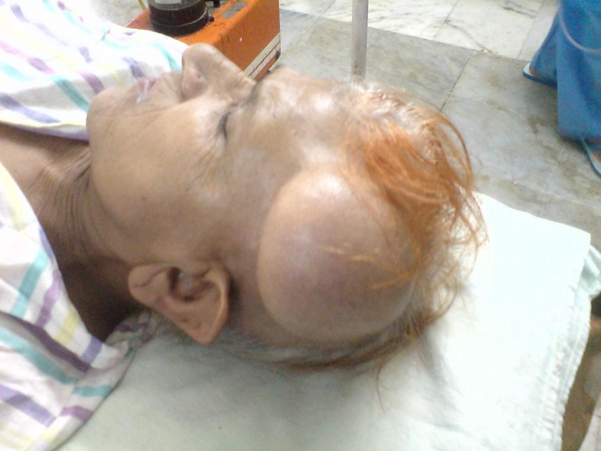 60 yaşındaki Maa Ji isimli hastada son 20 yılda büyüyen bir dermoid kist.