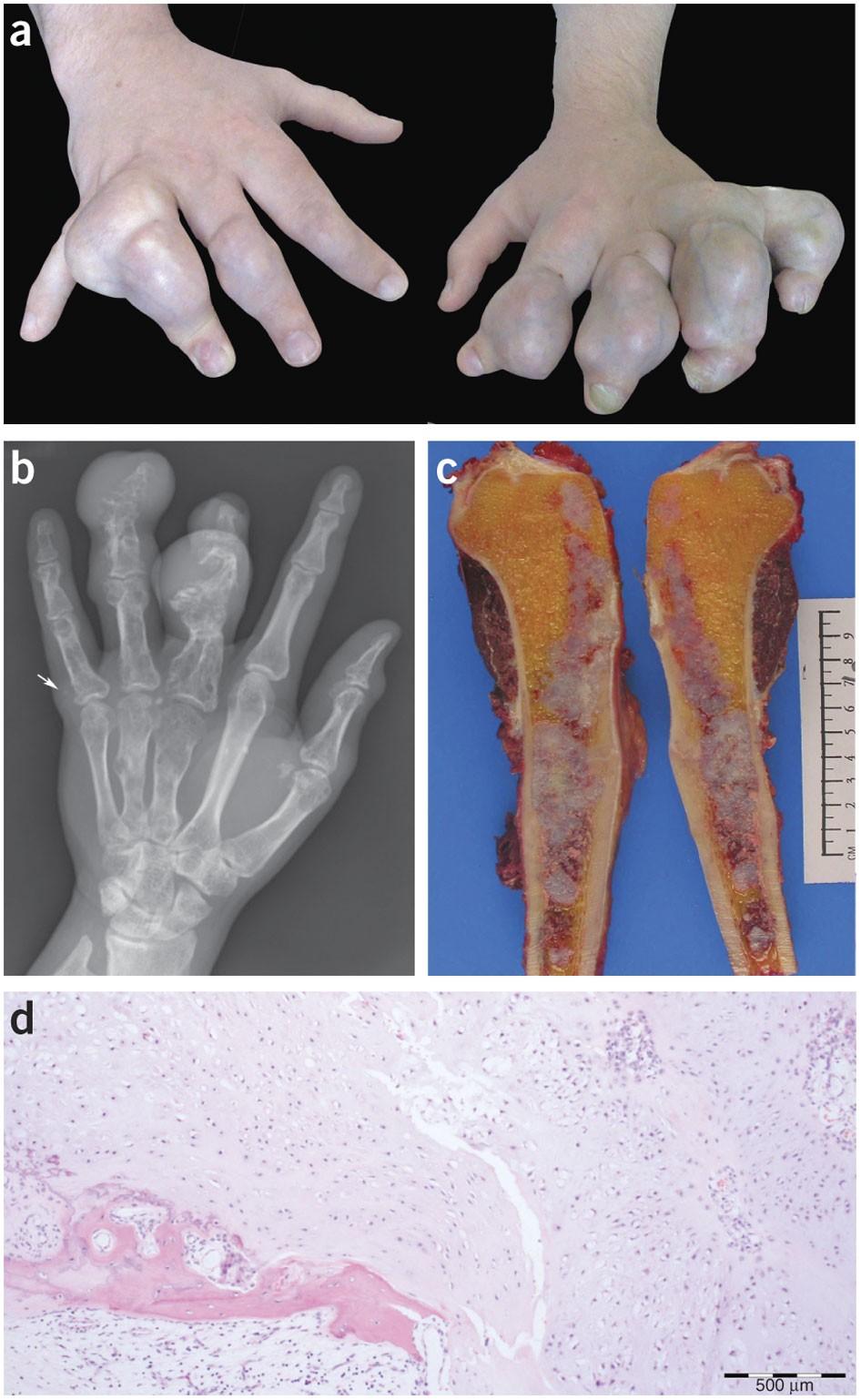 Ani etkili mutasyonlar sonucu oluşan fiziksel bir bozukluk, Ollier hastalığı...