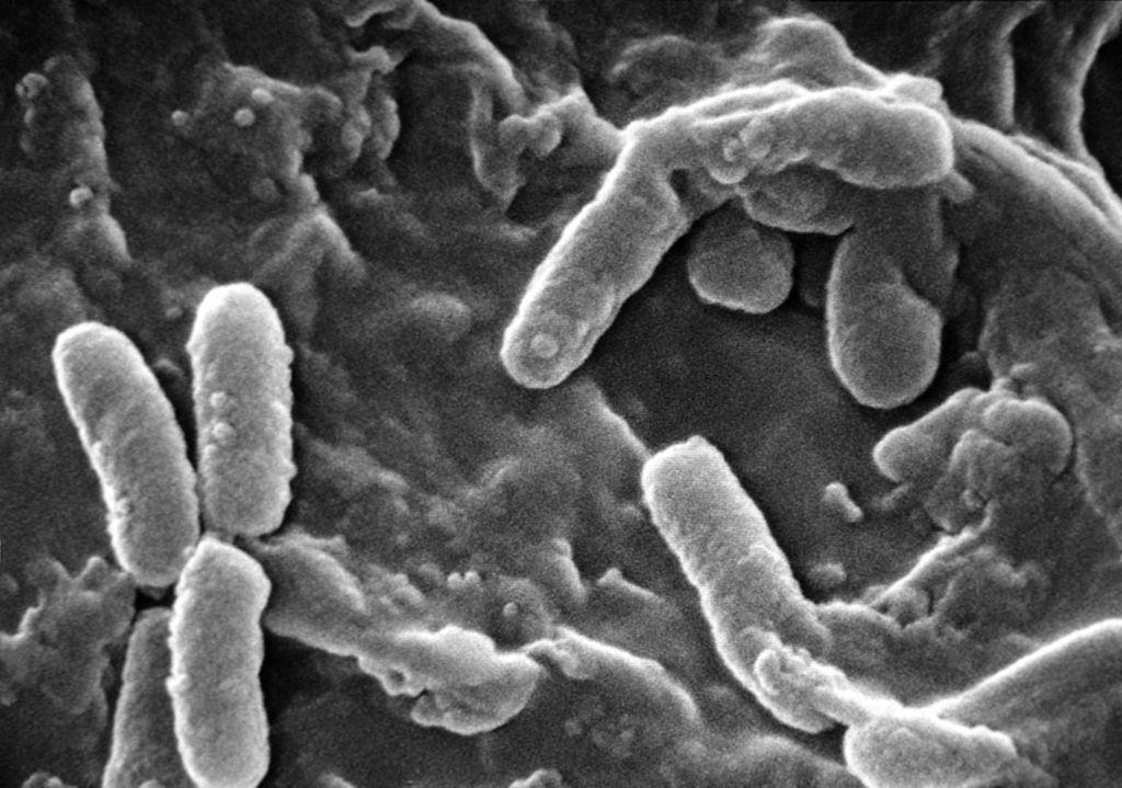 Kafein, bakterilerin insanlarda yol açtığı bazı enfeksiyonları tedavi edebilir. Yeni bir araştırma, bazı durumlarda kafeinin, bu bakterinin (Pseudomonas aeruginosa) çoğalmasını ve ölümcül hale dönüşmesini önlediğini gösteriyor.
