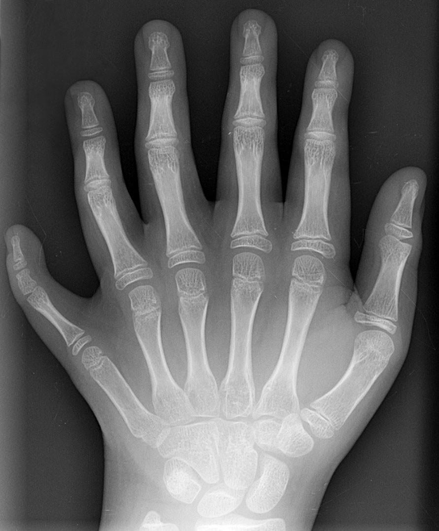 6 parmaklılık ne zaman hastalıktır, ne zaman bir varyasyon olarak görülmelidir? Ellerimiz, balıkların yüzgeçlerinden evrimleşmiştir ve 5 parmak yapısı buna bağlı olarak seçilmiştir. Yani illa 5 parmaklı olmamız gerekiyor diye bir şey yoktu, eğer ki evrimsel patikada 6 kemik evrimleşseydi, 6 parmaklılık normal olacaktı. Evrim tarihinde görebildiğimiz dramatik değişimler göz önüne alındığında, 6 parmaklılık eğer ki yaşam standardını düşürmüyorsa, bir varyasyon olarak kabul edilebilir.