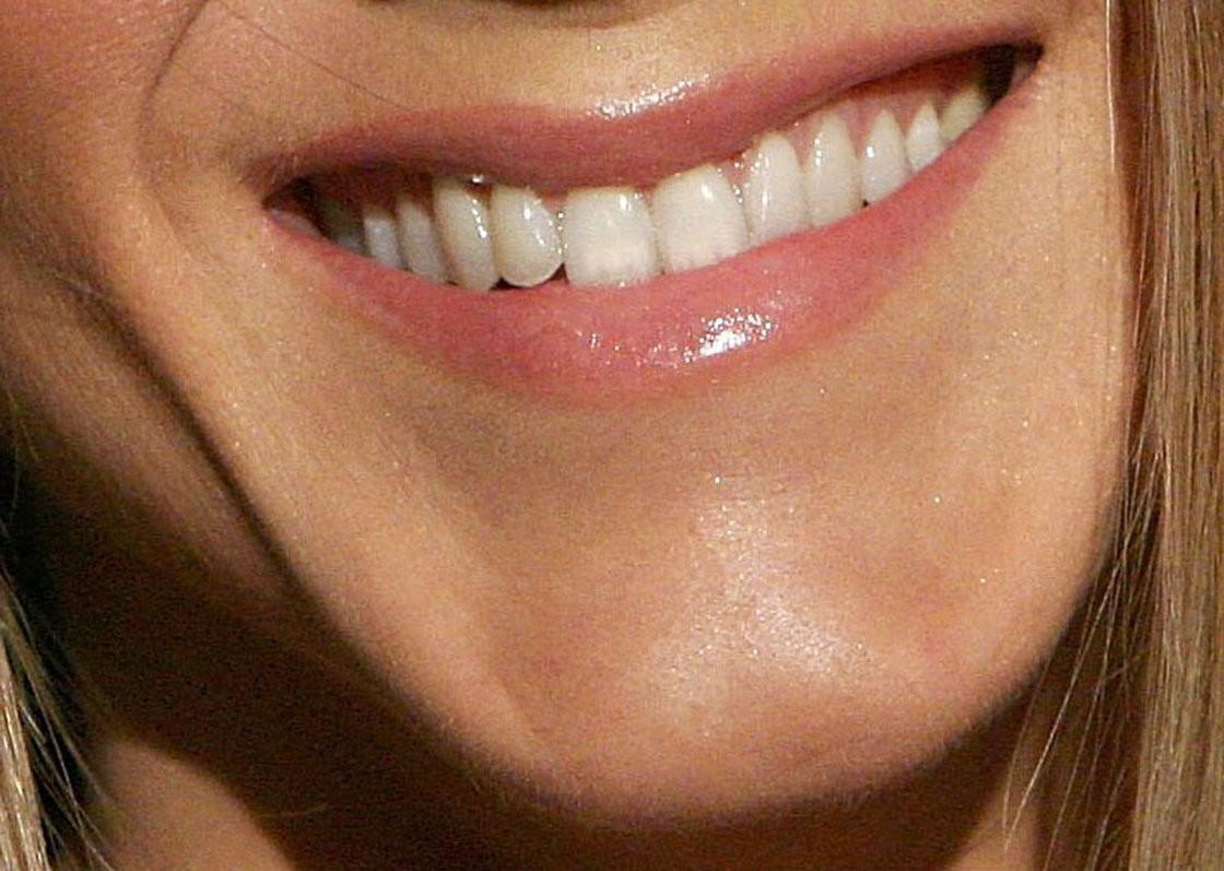 Jennifer Aniston'un Çenesi...