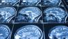 Dinlenik Beyinlerde Şizofreni İzleri Gözlenebiliyor!
