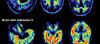 Alzheimer, Semptomların Ortaya Çıkmasından Önce Hasar Veriyor!