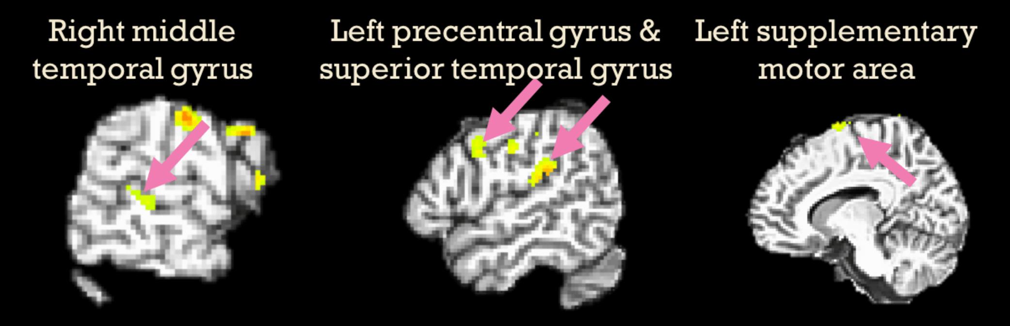 Acheulian bilişsel ağını biçimlendiren beyin bölümleri, ayrıca piyanistler piyano çalışırken de aktif.
