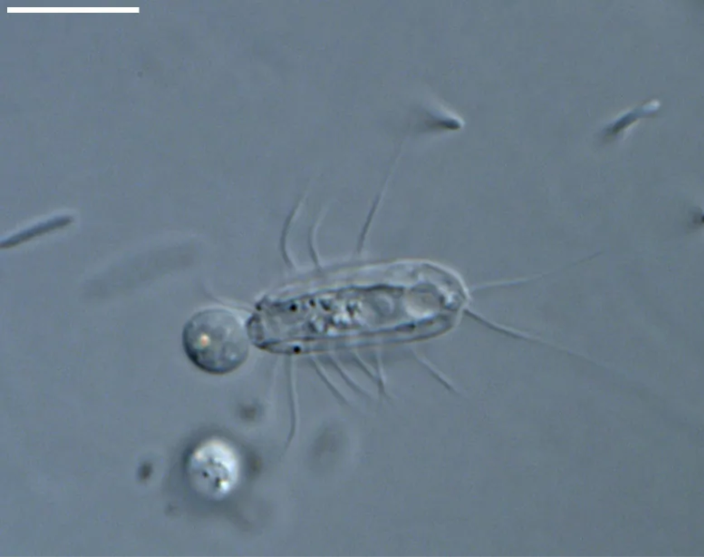 Hemimastix kukwesjijk ışık mikroskobu altında beslenirken.