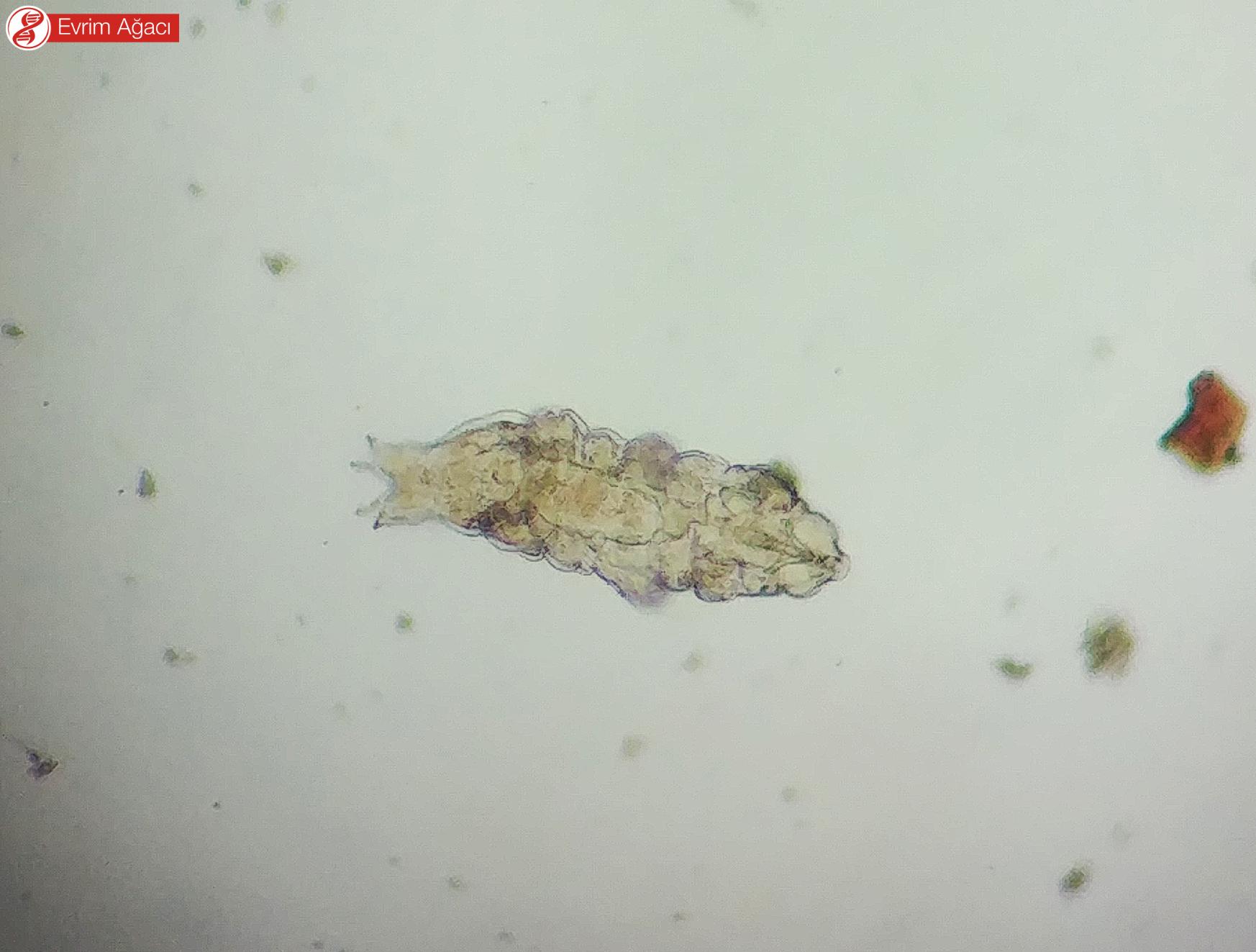 Abant Gölü'nden elde ettiğimiz Eutardigrad türleri.
