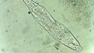 Tekerlekliler (Rotifera)