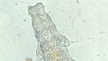 Su Ayıları (Tardigrada)