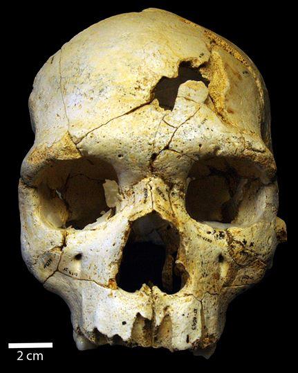 430 bin yıl önce, muhtemelen kişilerarası şiddet sonucu öldürülmüş bir bireyin kafatası kalıntıları.