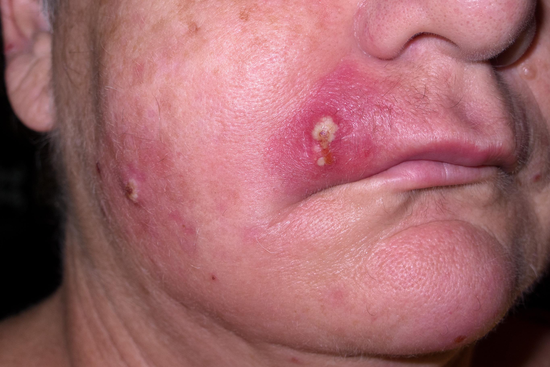 Erken/orta dönem enfeksiyon...