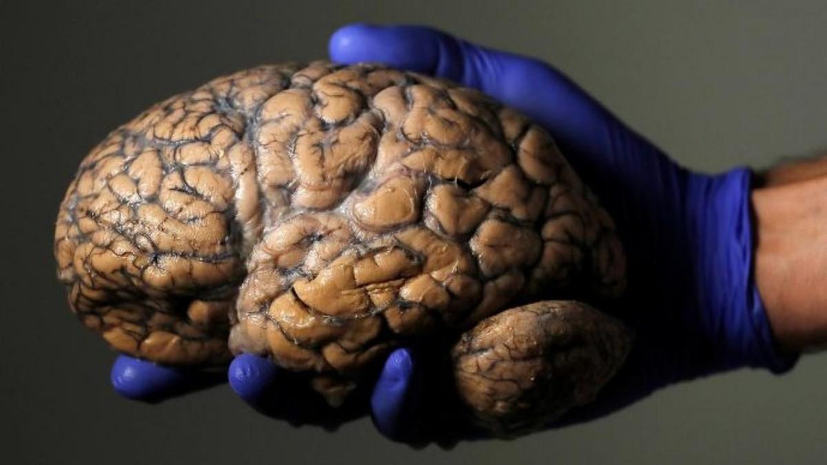 Cinsellik beyinde başlıyor