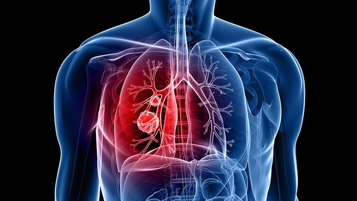 Akciğerdeki kitleler.
