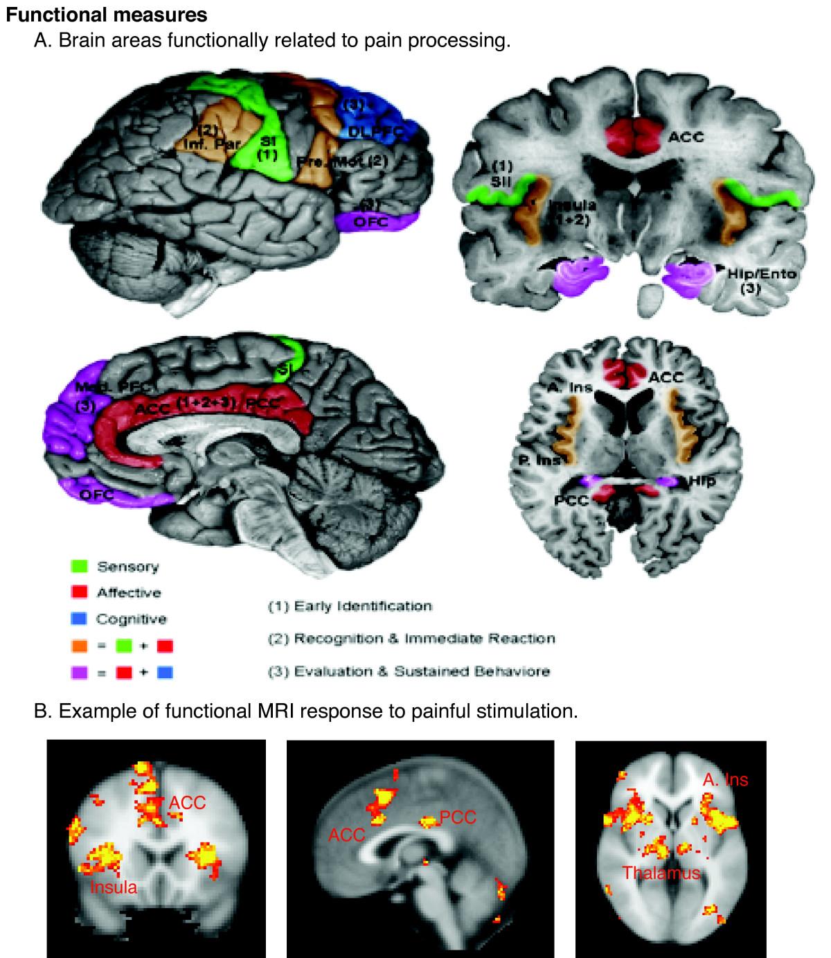 Acı Çeken Beynin fMRI Görüntüsü