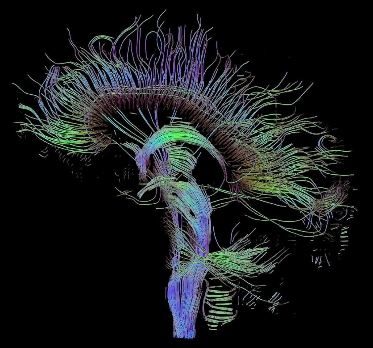Beynimizdeki bağlantılar...