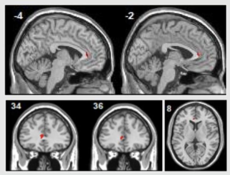 Majör depresyon hastaları psikolojik terapinin ardından sol rostral ön singulat kortekslerinde aktivite artışı göstermişlerdir. Görsel: Sankar et al, 2018