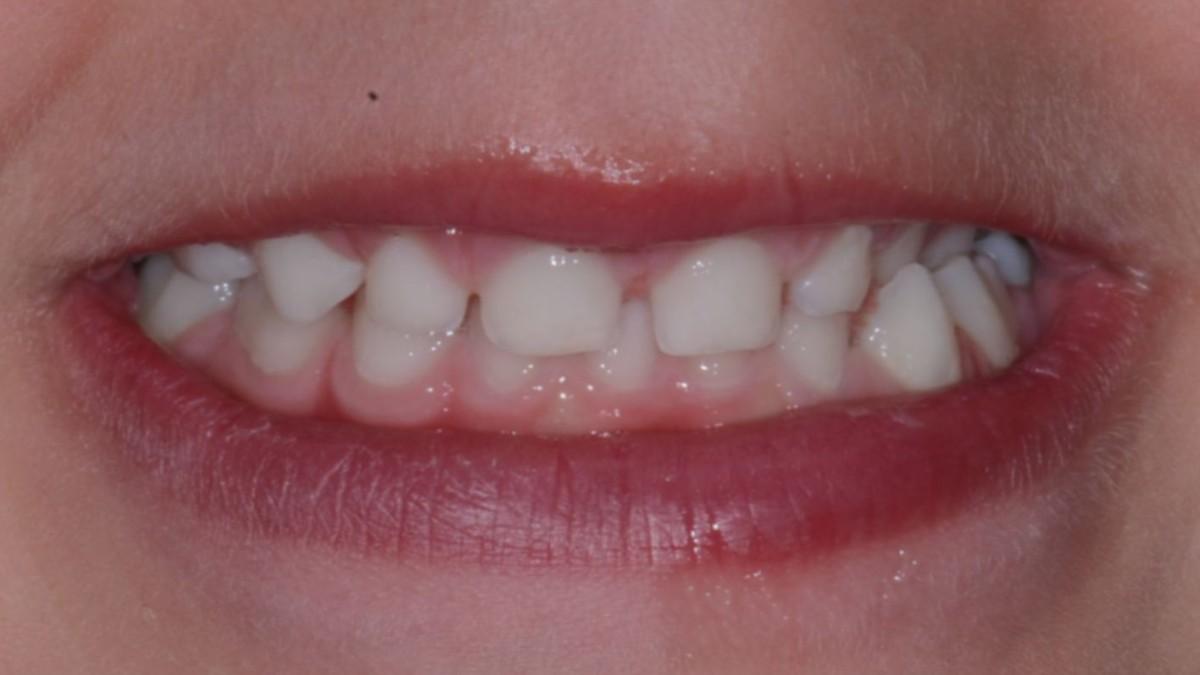 Çocuğunuzun süt dişlerini atmayın Çünkü