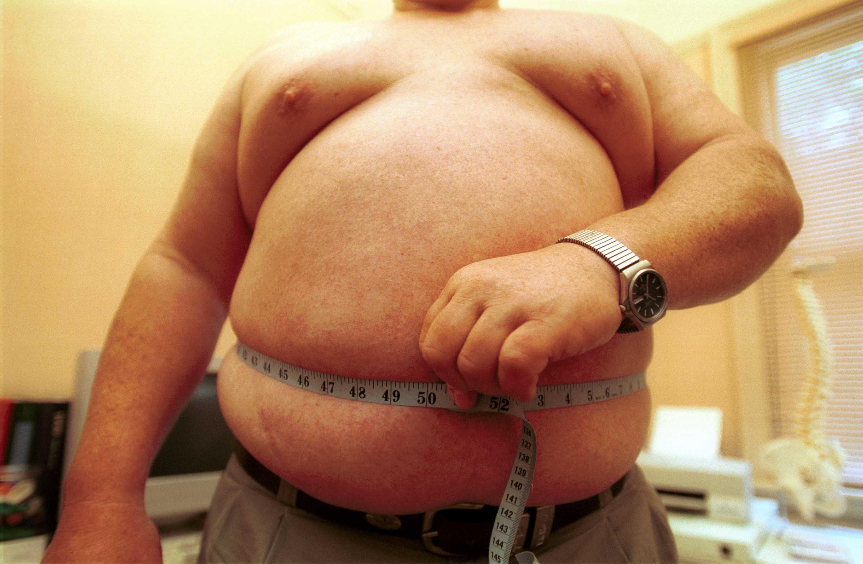 Obezite...