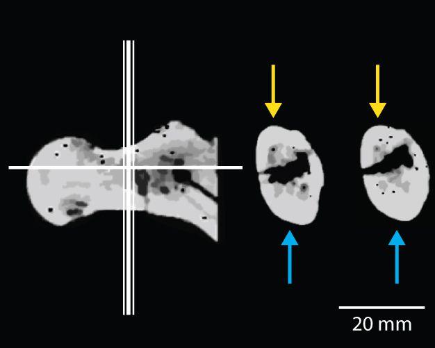 Görsel 3. Orrorin tugenensis'e ait örneklerden BAR 1002'00'ın femur boynunun CT taraması. En soldaki görüntüde femur boynundan alınan enine kesitlerin yeri (orta ve sağdaki görüntüler) gösteriliyor. Femur boynundaki kortikal kemiklerin dağılımı asimetrik ve korteksin alt kısmı (mavi ok ile gösterilen) üst kısmından (sarı ok ile gösterilen) daha kalındır. Modern insanlar da kortikal kemikte benzer asimetrik dağılıma sahipken Afrika insansıları daha simetrik dağılıma sahiptir ve bunun nedeni iki ayaklılık ile dört ayaklılığın ayağa farklı yükler uygulamasıdır.  2013 Nature Education Görsel Pickford et al. 2002 çalışmasından alınmıştır.