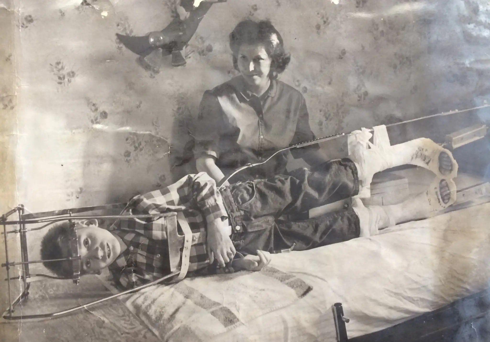 Çocuk Felci hastalarına uygulanması gereken tedavi.