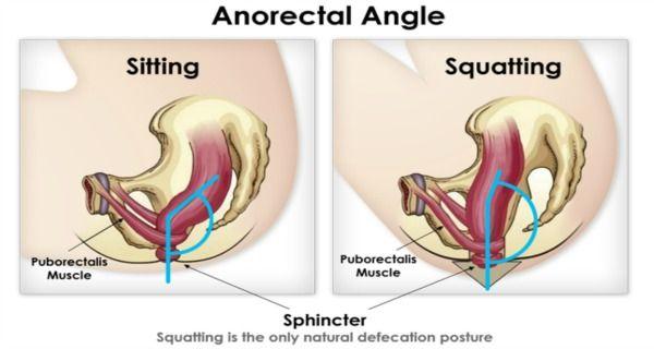 Oturma ve çömelme pozisyonlarında puborectalis kasının konumu
