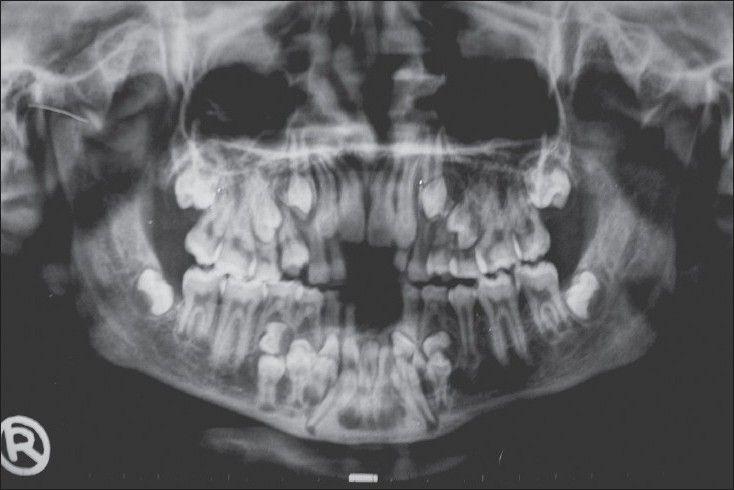 insan ağıziçi film görüntüsü